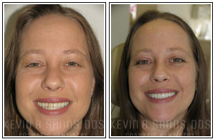 Smile Makeover Before and After Images