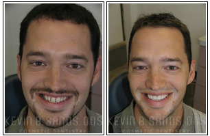 Smile Makeover Before and After Pictures